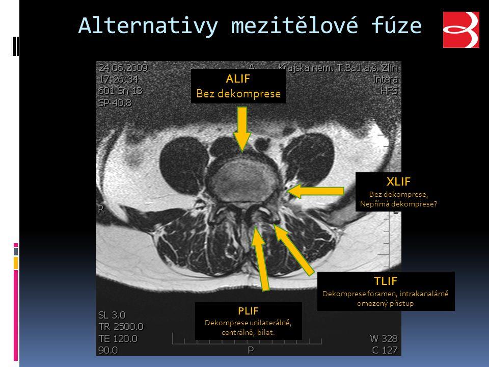 Alternativy mezitělové fúze PLIF Dekomprese unilaterálně, centrálně, bilat.