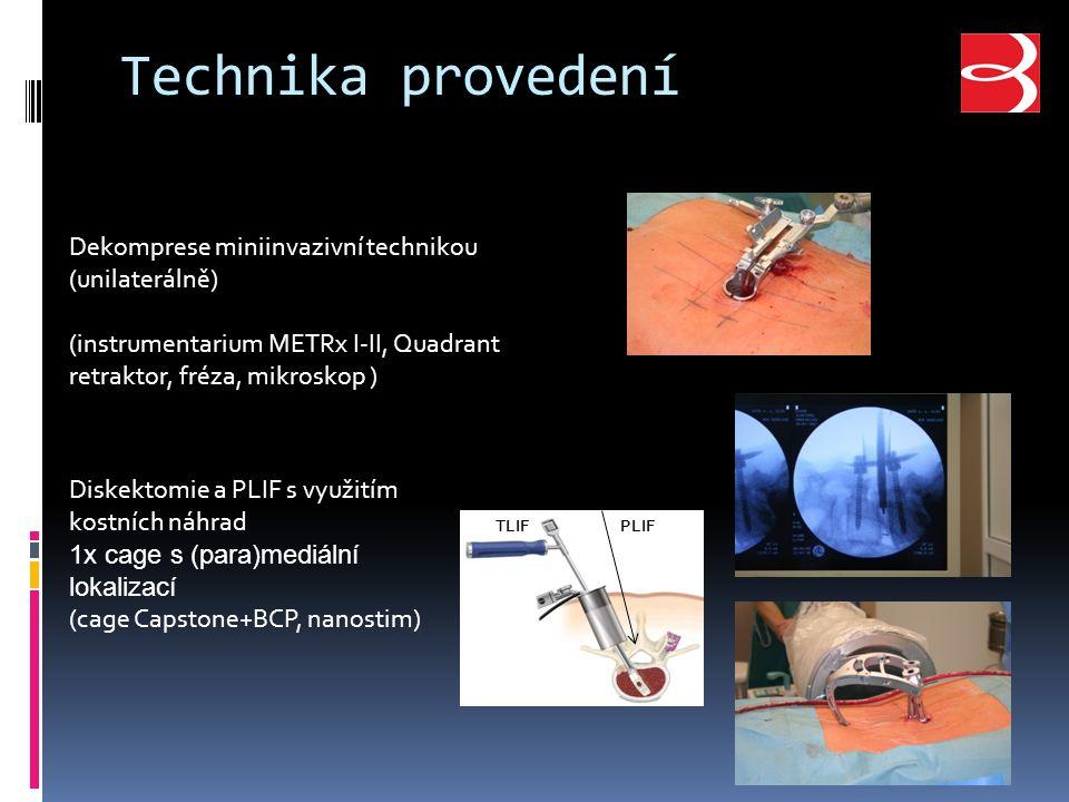 Technika provedení Dekomprese miniinvazivní technikou (unilaterálně) (instrumentarium METRx I-II, Quadrant retraktor, fréza, mikroskop ) Diskektomie a PLIF s využitím kostních náhrad 1x cage s (para)mediální lokalizací (cage Capstone+BCP, nanostim) TLIFPLIF