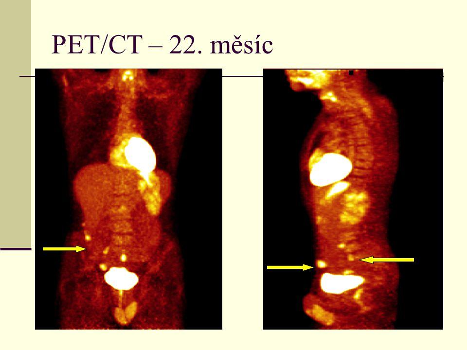 PET/CT – 22. měsíc