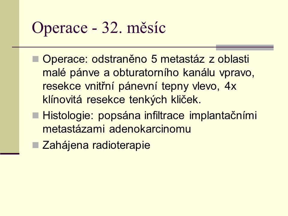 Operace - 32. měsíc Operace: odstraněno 5 metastáz z oblasti malé pánve a obturatorního kanálu vpravo, resekce vnitřní pánevní tepny vlevo, 4x klínovi