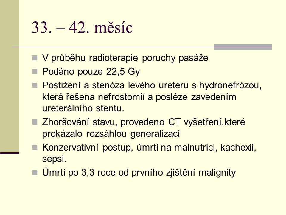 33. – 42. měsíc V průběhu radioterapie poruchy pasáže Podáno pouze 22,5 Gy Postižení a stenóza levého ureteru s hydronefrózou, která řešena nefrostomi