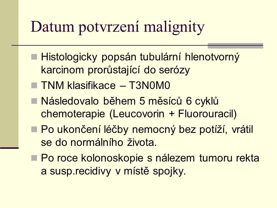 Datum potvrzení malignity Histologicky popsán tubulární hlenotvorný karcinom prorůstající do serózy TNM klasifikace – T3N0M0 Následovalo během 5 měsíc