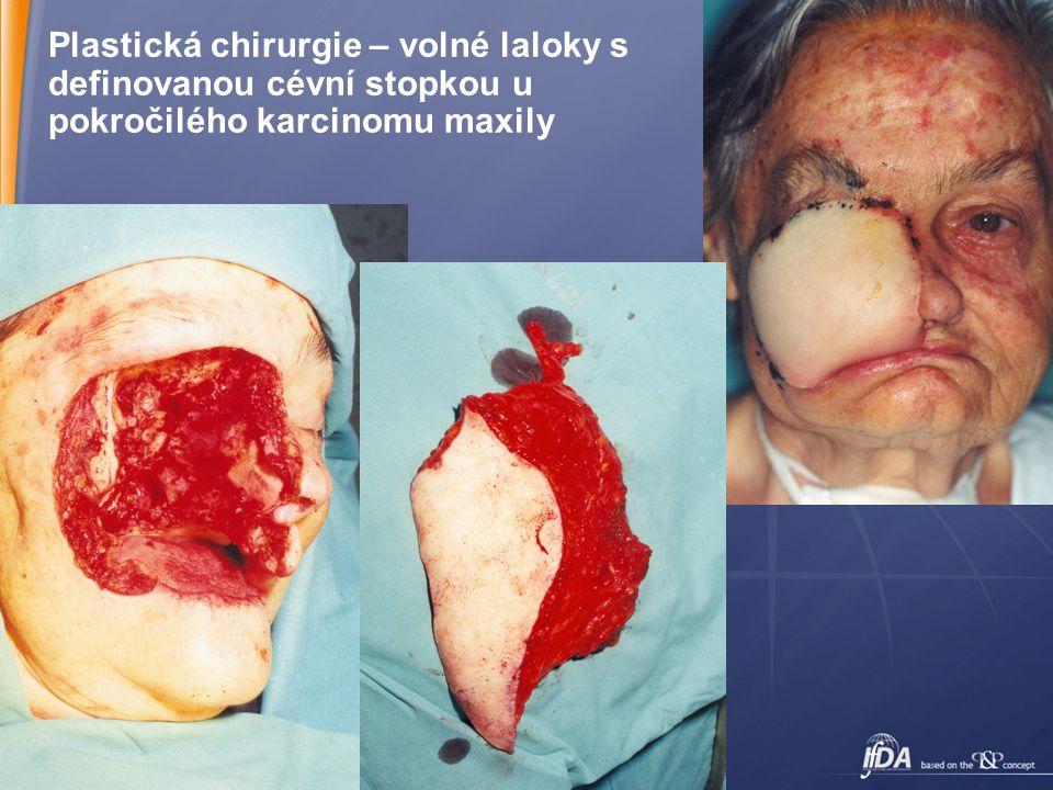 16 Plastická chirurgie – volné laloky s definovanou cévní stopkou u pokročilého karcinomu maxily