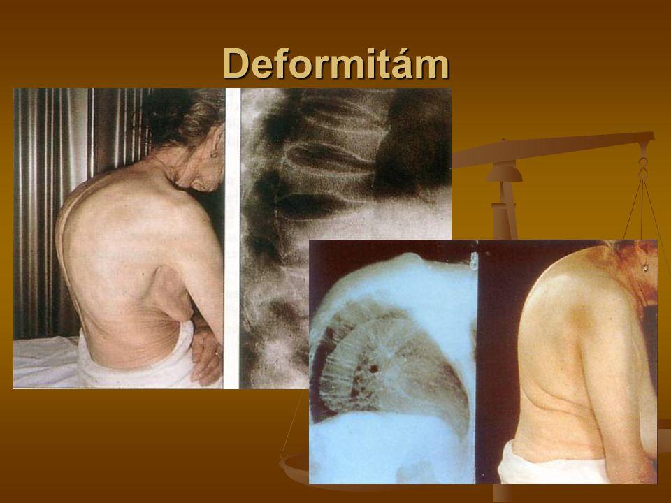 …bolestem, poklesu kvality života, ztrátě soběstačnosti, invaliditě a úmrtí v souvislosti s frakturami krčku a obratlových těl