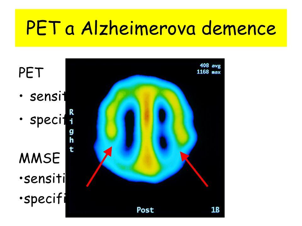 PET a Alzheimerova demence PET sensitivita 88% specificita 87% MMSE sensitivita 87% specificita 82%