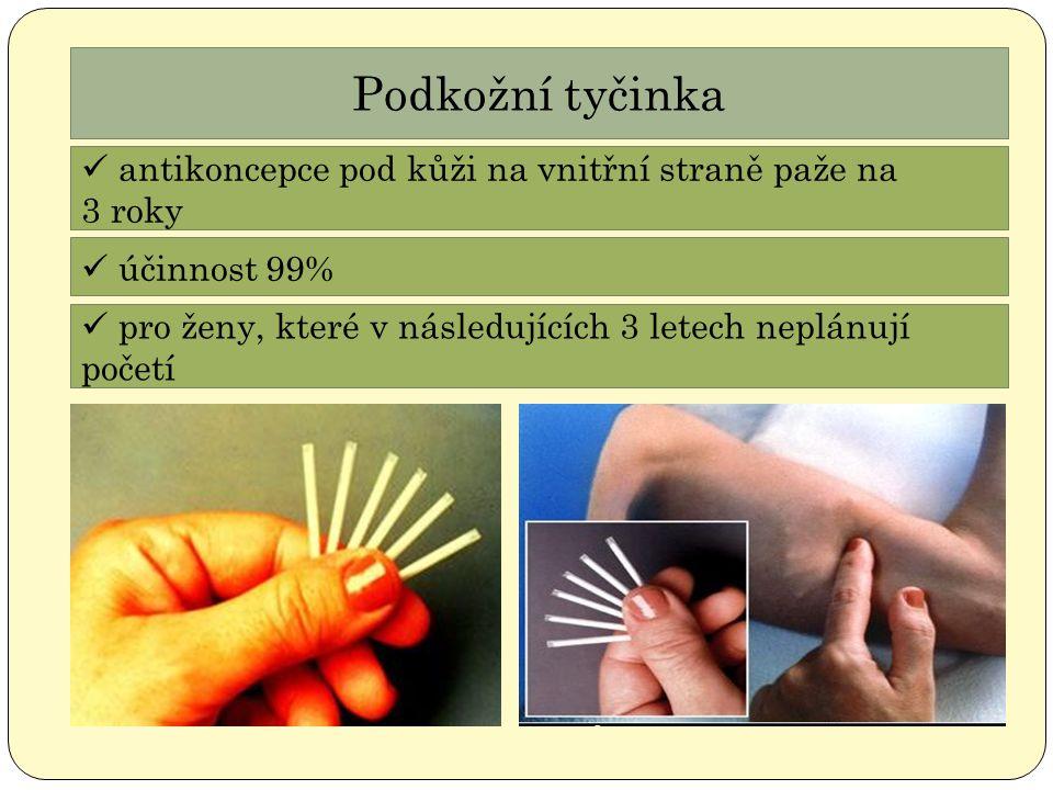 Podkožní tyčinka antikoncepce pod kůži na vnitřní straně paže na 3 roky účinnost 99% pro ženy, které v následujících 3 letech neplánují početí