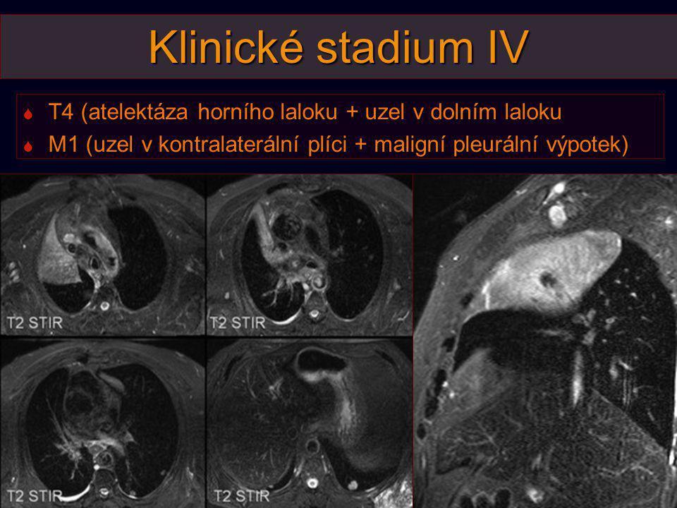 Klinické stadium IV  T4 (atelektáza horního laloku + uzel v dolním laloku  M1 (uzel v kontralaterální plíci + maligní pleurální výpotek)