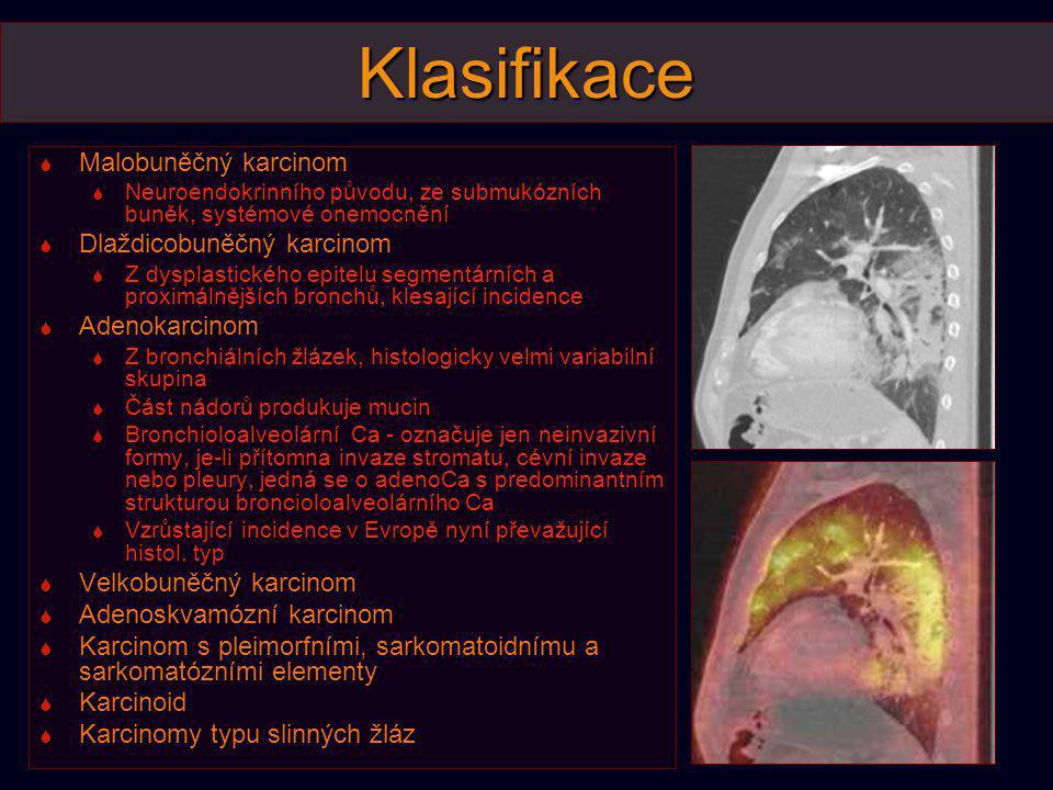 Klasifikace  Malobuněčný karcinom  Neuroendokrinního původu, ze submukózních buněk, systémové onemocnění  Dlaždicobuněčný karcinom  Z dysplastické