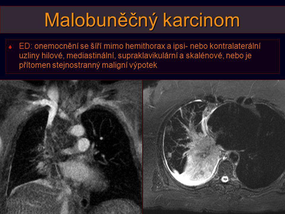Malobuněčný karcinom  ED: onemocnění se šíří mimo hemithorax a ipsi- nebo kontralaterální uzliny hilové, mediastinální, supraklavikulární a skalénové
