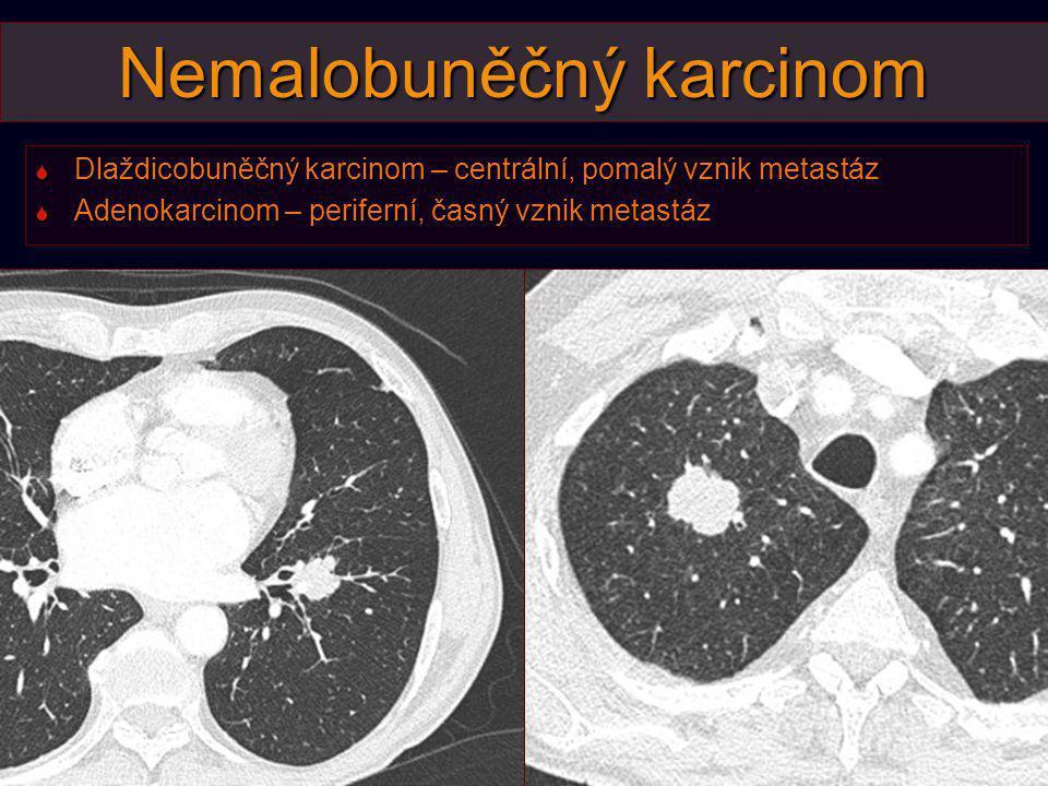 Klinické stadium IV – T3NXM1b