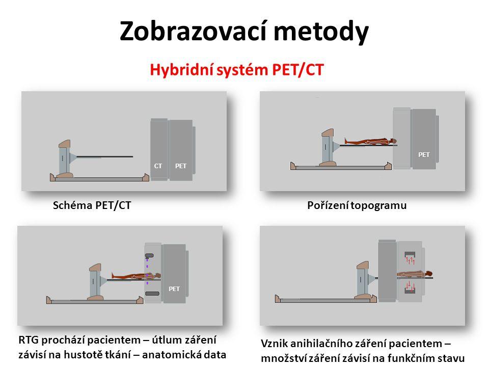 Zobrazovací metody Hybridní systém PET/CT Schéma PET/CTPořízení topogramu RTG prochází pacientem – útlum záření závisí na hustotě tkání – anatomická d