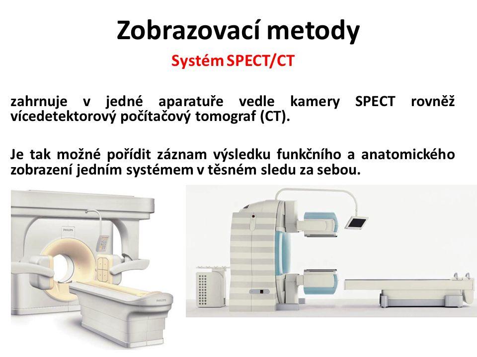 Zobrazovací metody Systém SPECT/CT zahrnuje v jedné aparatuře vedle kamery SPECT rovněž vícedetektorový počítačový tomograf (CT). Je tak možné pořídit