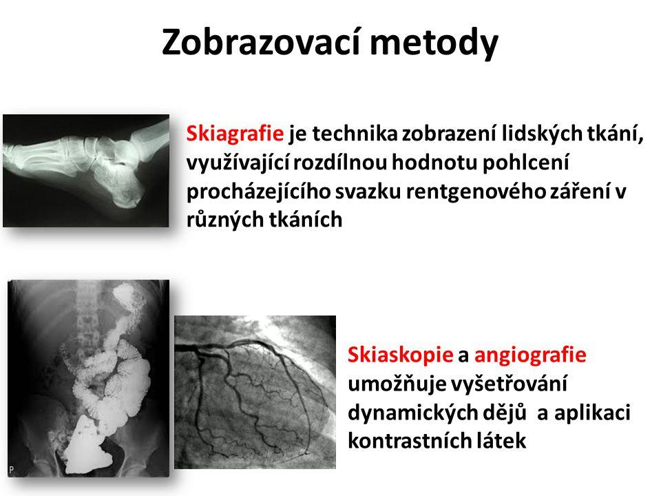 Zobrazovací metody Skiagrafie je technika zobrazení lidských tkání, využívající rozdílnou hodnotu pohlcení procházejícího svazku rentgenového záření v