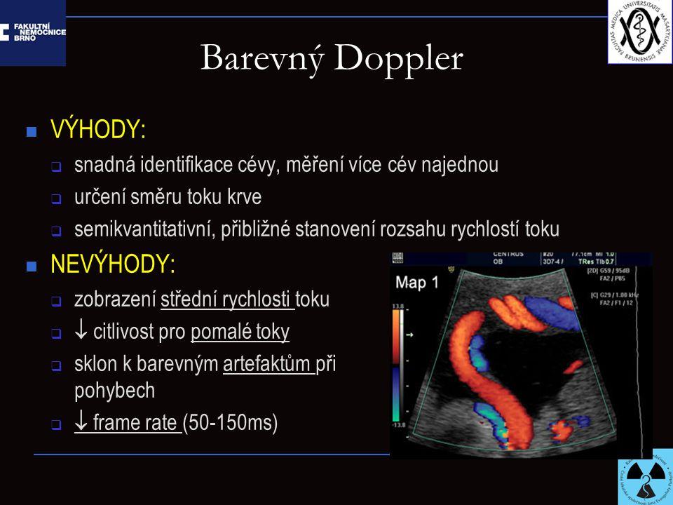 Barevný Doppler VÝHODY:  snadná identifikace cévy, měření více cév najednou  určení směru toku krve  semikvantitativní, přibližné stanovení rozsahu rychlostí toku NEVÝHODY:  zobrazení střední rychlosti toku   citlivost pro pomalé toky  sklon k barevným artefaktům při pohybech   frame rate (50-150ms)