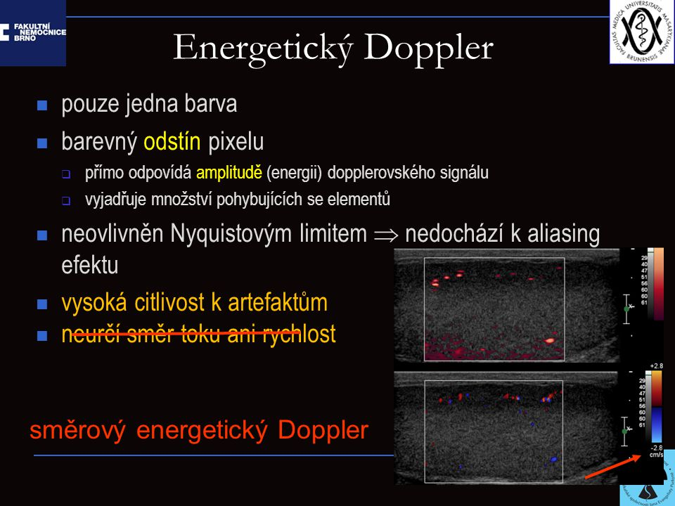 Energetický Doppler pouze jedna barva barevný odstín pixelu  přímo odpovídá amplitudě (energii) dopplerovského signálu  vyjadřuje množství pohybujících se elementů neovlivněn Nyquistovým limitem  nedochází k aliasing efektu vysoká citlivost k artefaktům neurčí směr toku ani rychlost směrový energetický Doppler