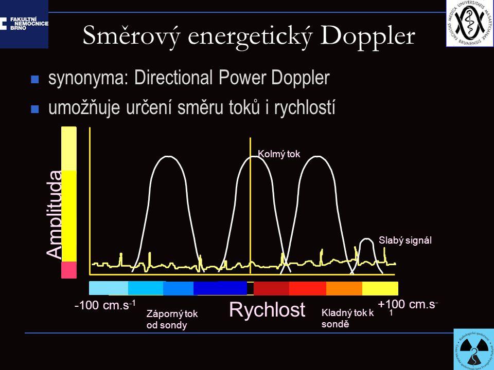 Směrový energetický Doppler synonyma: Directional Power Doppler umožňuje určení směru toků i rychlostí Rychlost Amplituda +100 cm.s - 1 -100 cm.s -1 Z