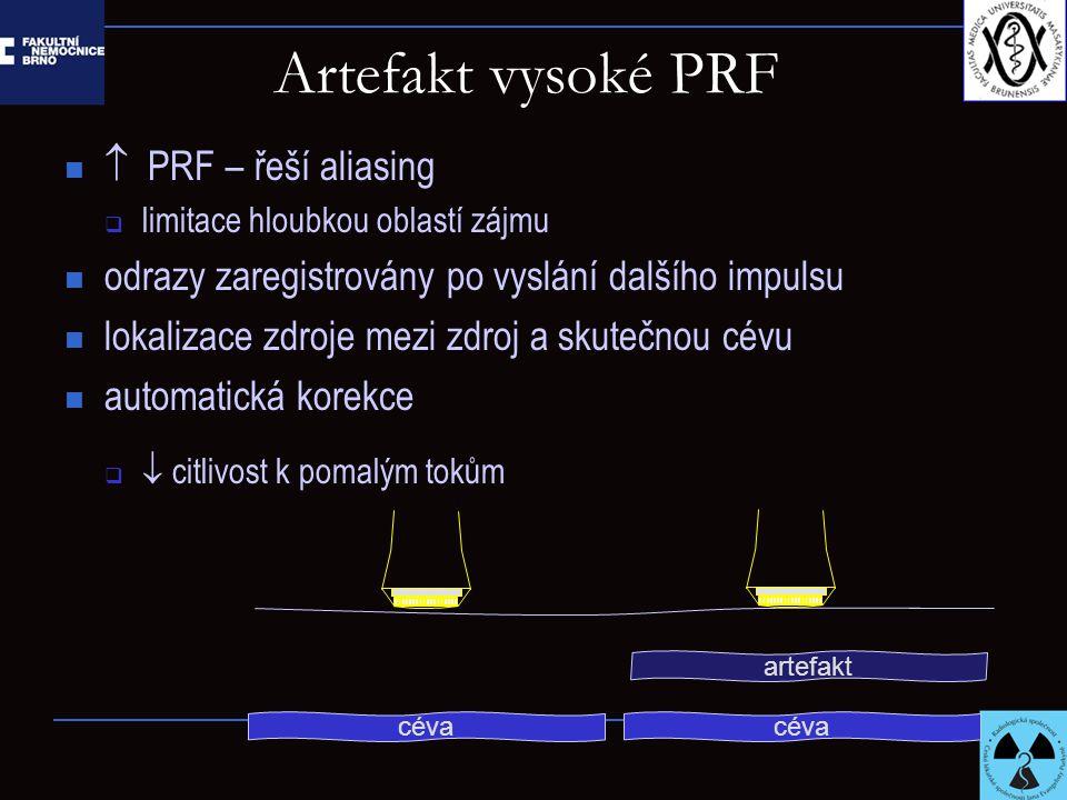 Artefakt vysoké PRF  PRF – řeší aliasing  limitace hloubkou oblastí zájmu odrazy zaregistrovány po vyslání dalšího impulsu lokalizace zdroje mezi zdroj a skutečnou cévu automatická korekce   citlivost k pomalým tokům artefakt céva