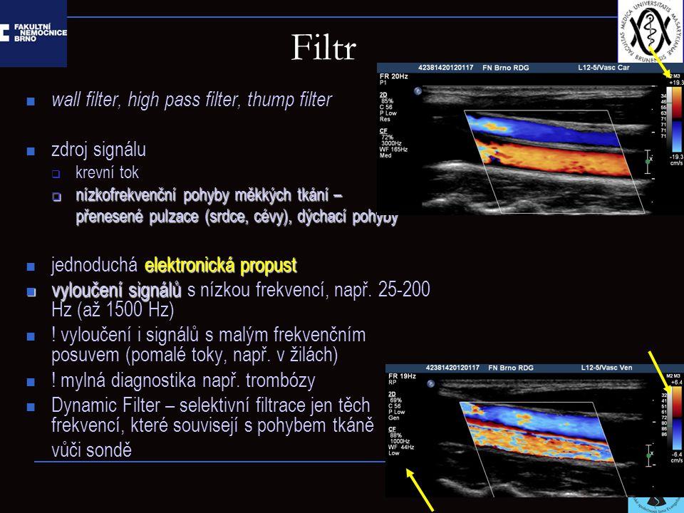 Filtr wall filter, high pass filter, thump filter zdroj signálu  krevní tok  nízkofrekvenční pohyby měkkých tkání – přenesené pulzace (srdce, cévy),