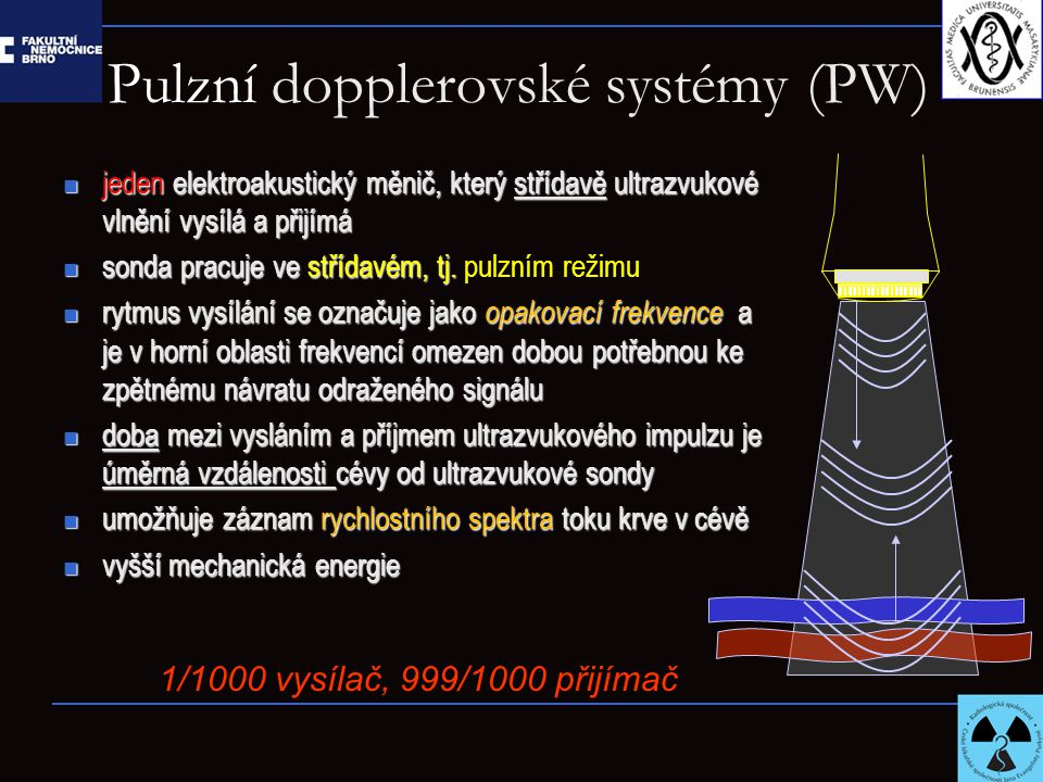 Pulzní dopplerovské systémy (PW) jeden elektroakustický měnič, který střídavě ultrazvukové vlnění vysílá a přijímá jeden elektroakustický měnič, který střídavě ultrazvukové vlnění vysílá a přijímá sonda pracuje ve střídavém, tj.