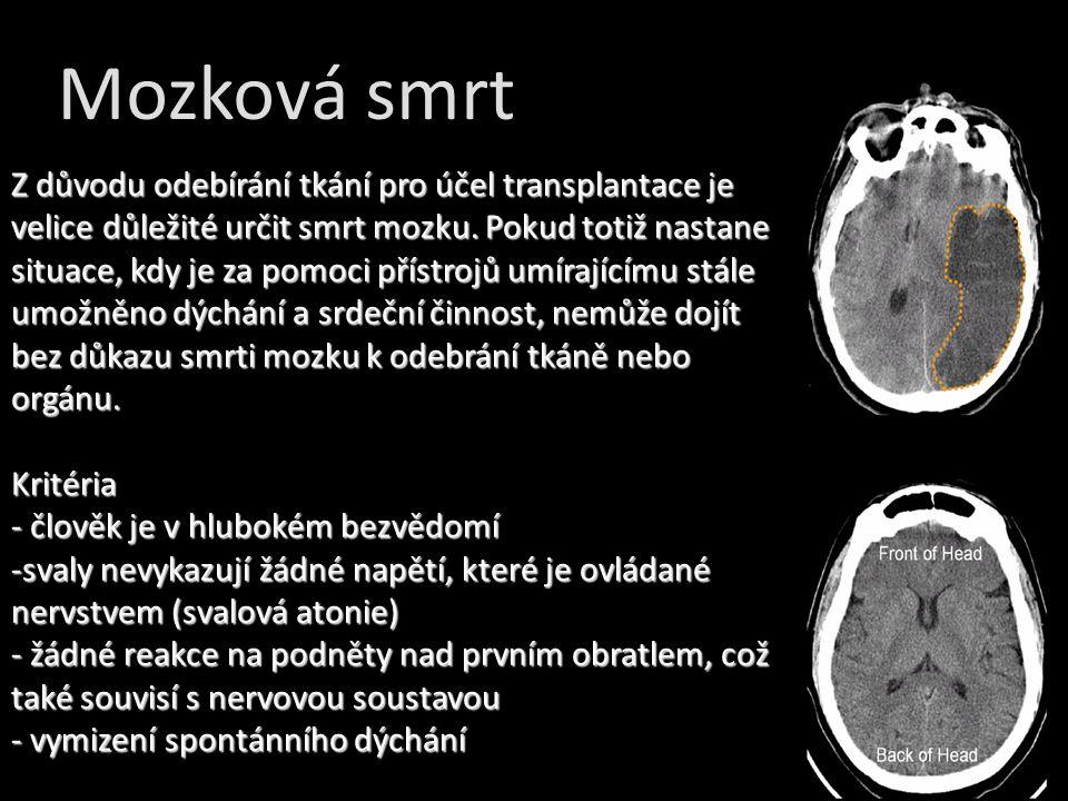 Z důvodu odebírání tkání pro účel transplantace je velice důležité určit smrt mozku. Pokud totiž nastane situace, kdy je za pomoci přístrojů umírající