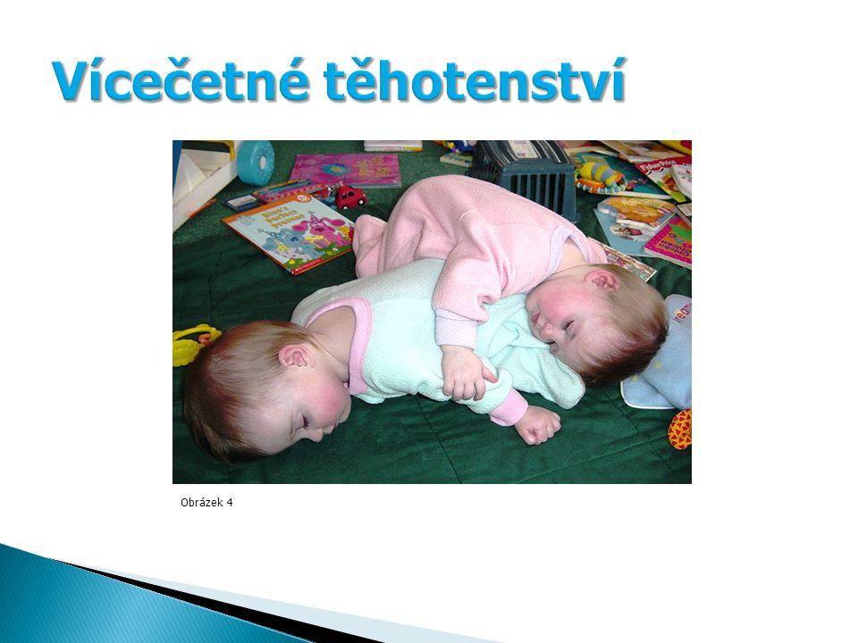 Obrázek 4