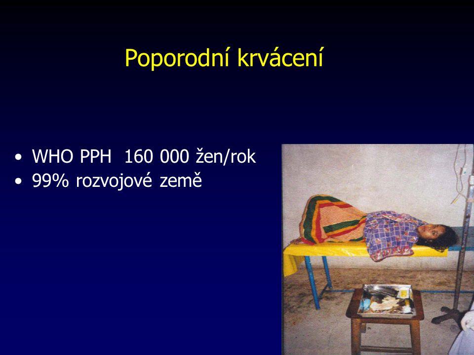 Poporodní krvácení WHO PPH 160 000 žen/rok 99% rozvojové země