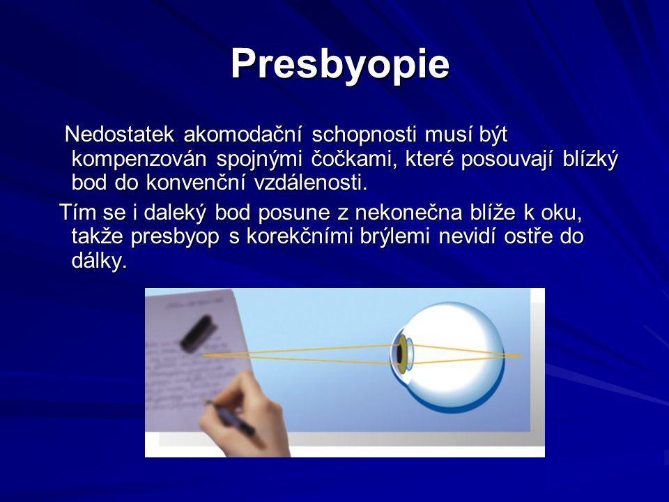 Presbyopie Presbyopie Nedostatek akomodační schopnosti musí být kompenzován spojnými čočkami, které posouvají blízký bod do konvenční vzdálenosti. Ned