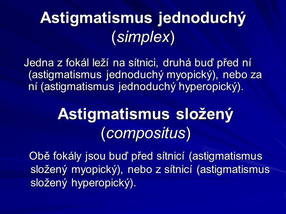 Astigmatismus jednoduchý (simplex) Jedna z fokál leží na sítnici, druhá buď před ní (astigmatismus jednoduchý myopický), nebo za ní (astigmatismus jed