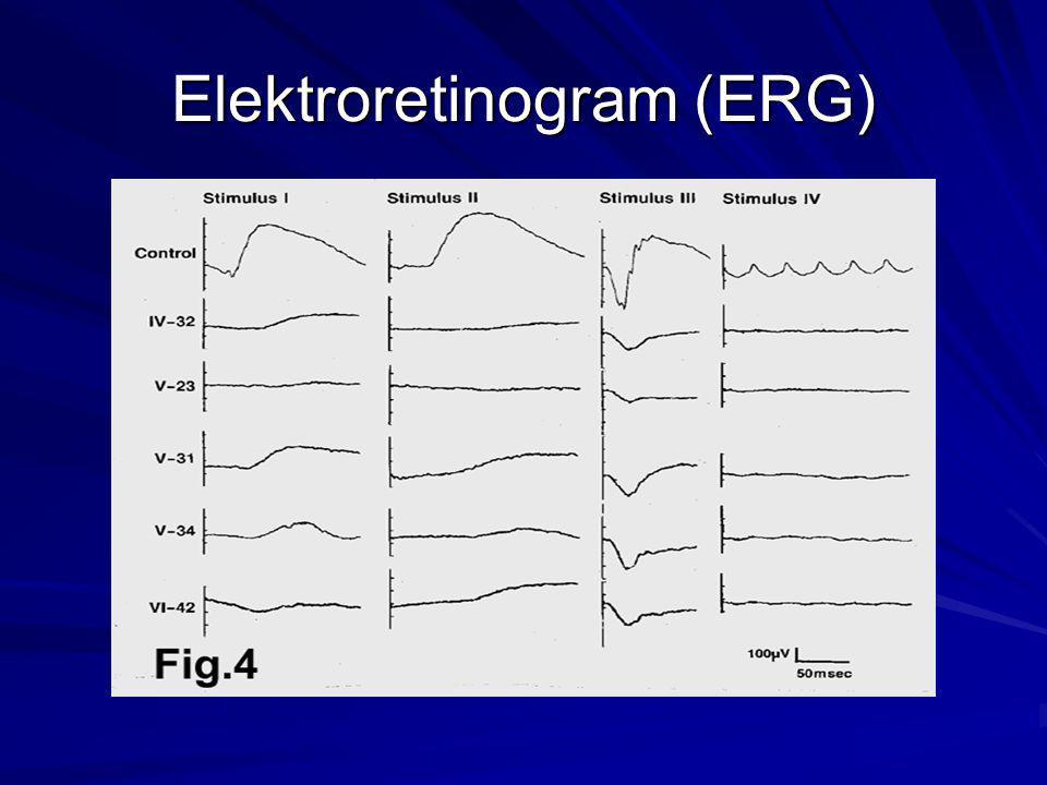 Elektroretinogram (ERG)