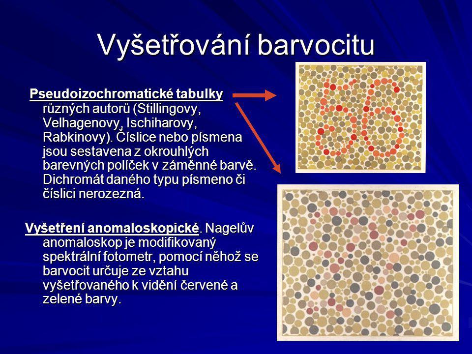 Vyšetřování barvocitu Pseudoizochromatické tabulky různých autorů (Stillingovy, Velhagenovy, Ischiharovy, Rabkinovy). Číslice nebo písmena jsou sestav