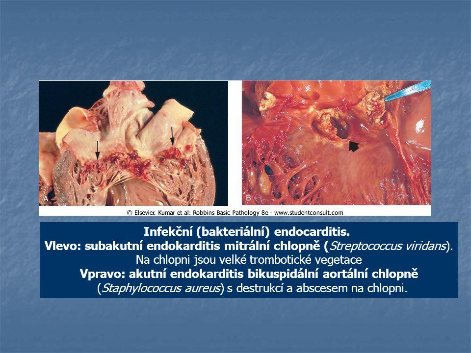 Infekční (bakteriální) endocarditis. Vlevo: subakutní endokarditis mitrální chlopně (Streptococcus viridans). Na chlopni jsou velké trombotické vegeta