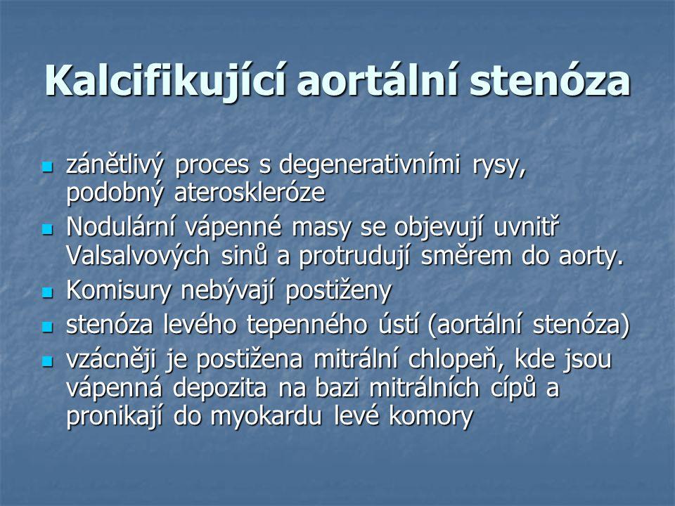Kalcifikující aortální stenóza zánětlivý proces s degenerativními rysy, podobný ateroskleróze zánětlivý proces s degenerativními rysy, podobný aterosk