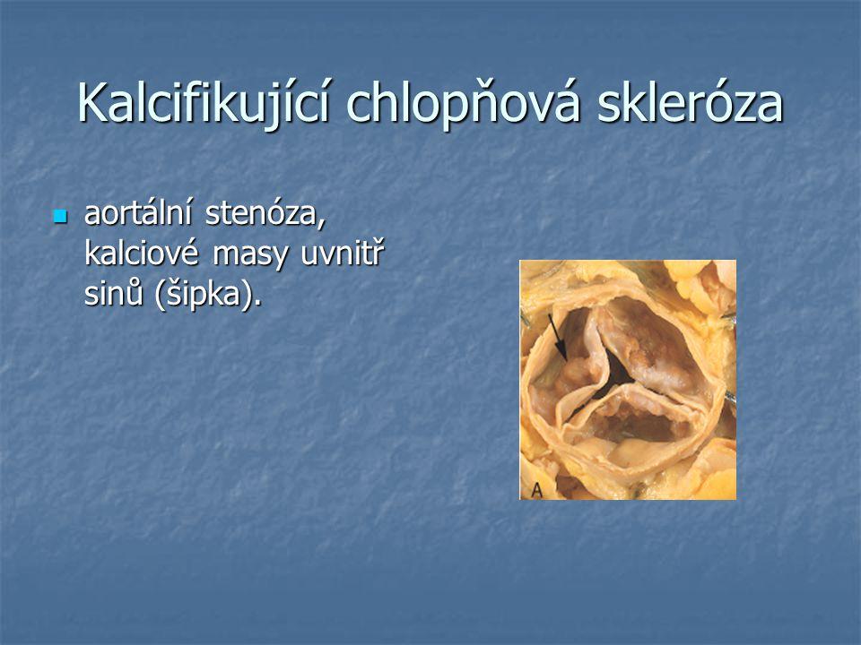 Kalcifikující chlopňová skleróza aortální stenóza, kalciové masy uvnitř sinů (šipka). aortální stenóza, kalciové masy uvnitř sinů (šipka).