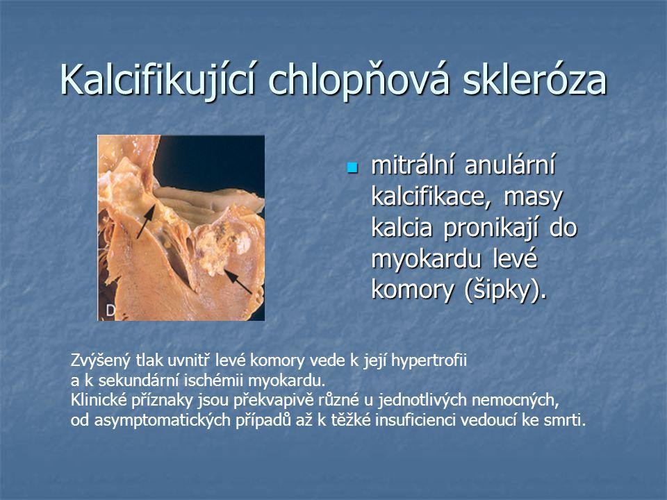 Kalcifikující chlopňová skleróza mitrální anulární kalcifikace, masy kalcia pronikají do myokardu levé komory (šipky). mitrální anulární kalcifikace,