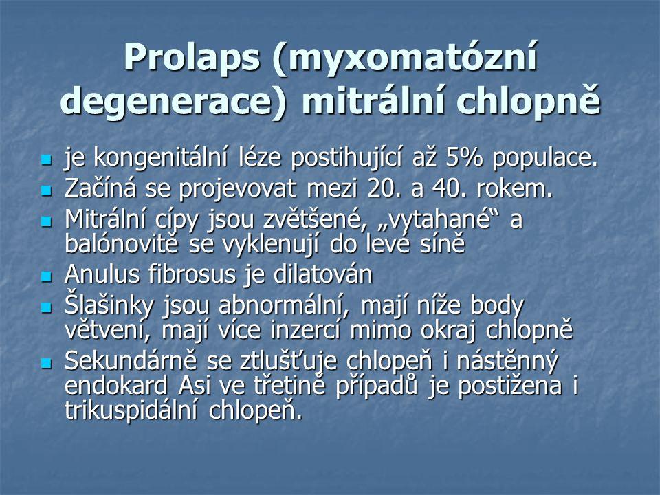 Prolaps (myxomatózní degenerace) mitrální chlopně je kongenitální léze postihující až 5% populace. je kongenitální léze postihující až 5% populace. Za