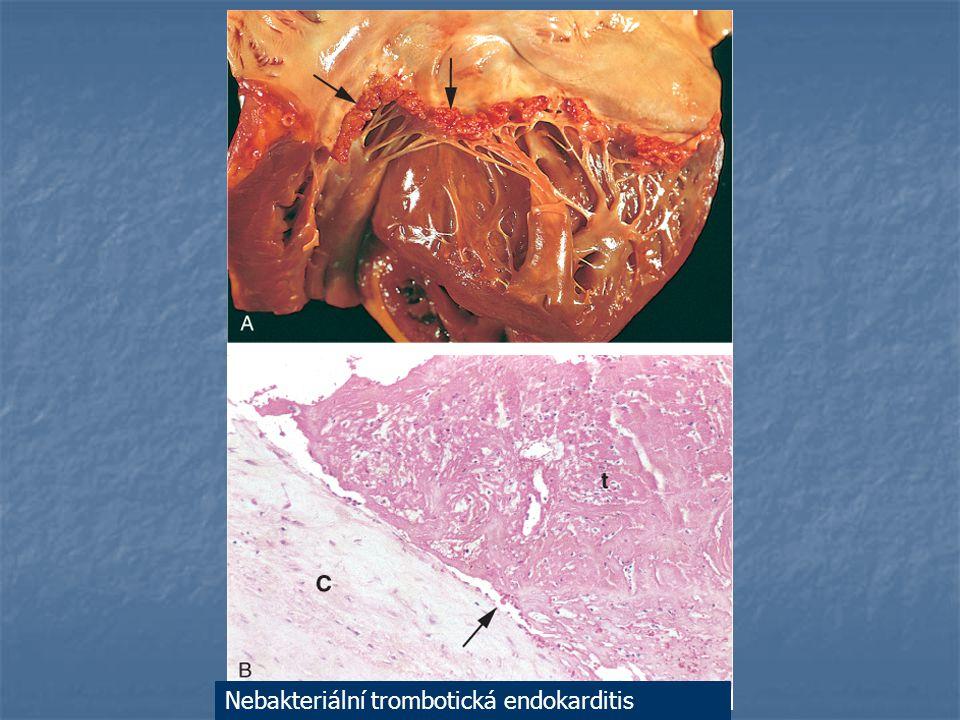 Nebakteriální trombotická endokarditis