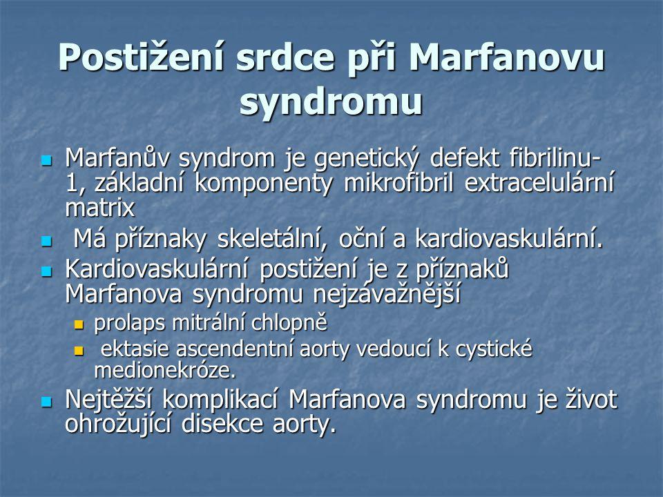 Postižení srdce při Marfanovu syndromu Marfanův syndrom je genetický defekt fibrilinu- 1, základní komponenty mikrofibril extracelulární matrix Marfan