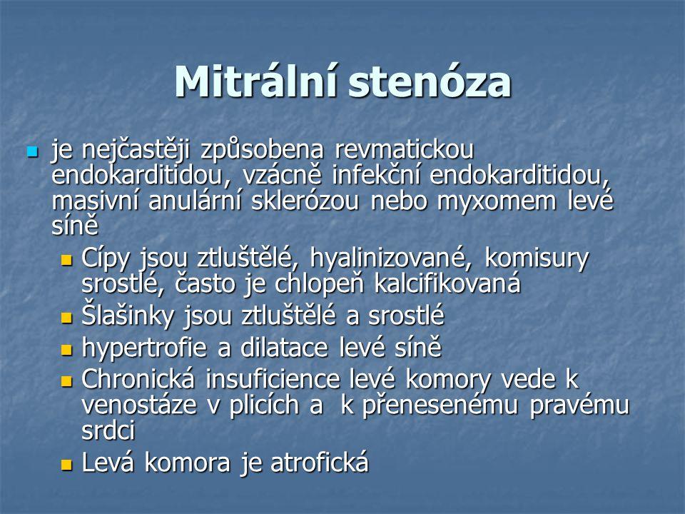 Mitrální stenóza je nejčastěji způsobena revmatickou endokarditidou, vzácně infekční endokarditidou, masivní anulární sklerózou nebo myxomem levé síně