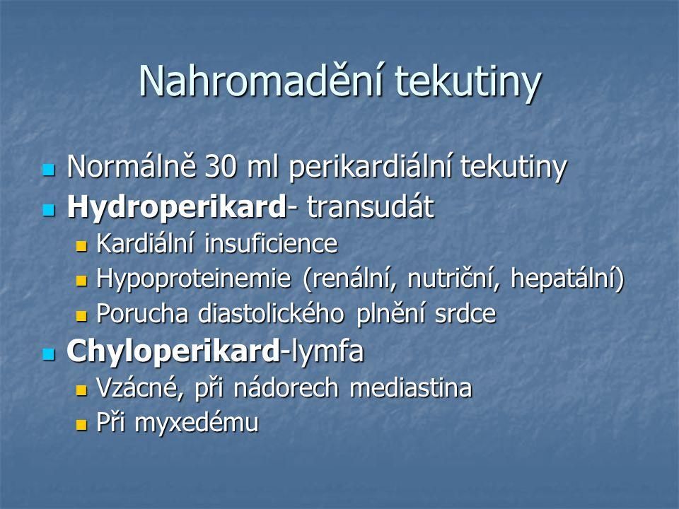 Nahromadění tekutiny Normálně 30 ml perikardiální tekutiny Normálně 30 ml perikardiální tekutiny Hydroperikard- transudát Hydroperikard- transudát Kar
