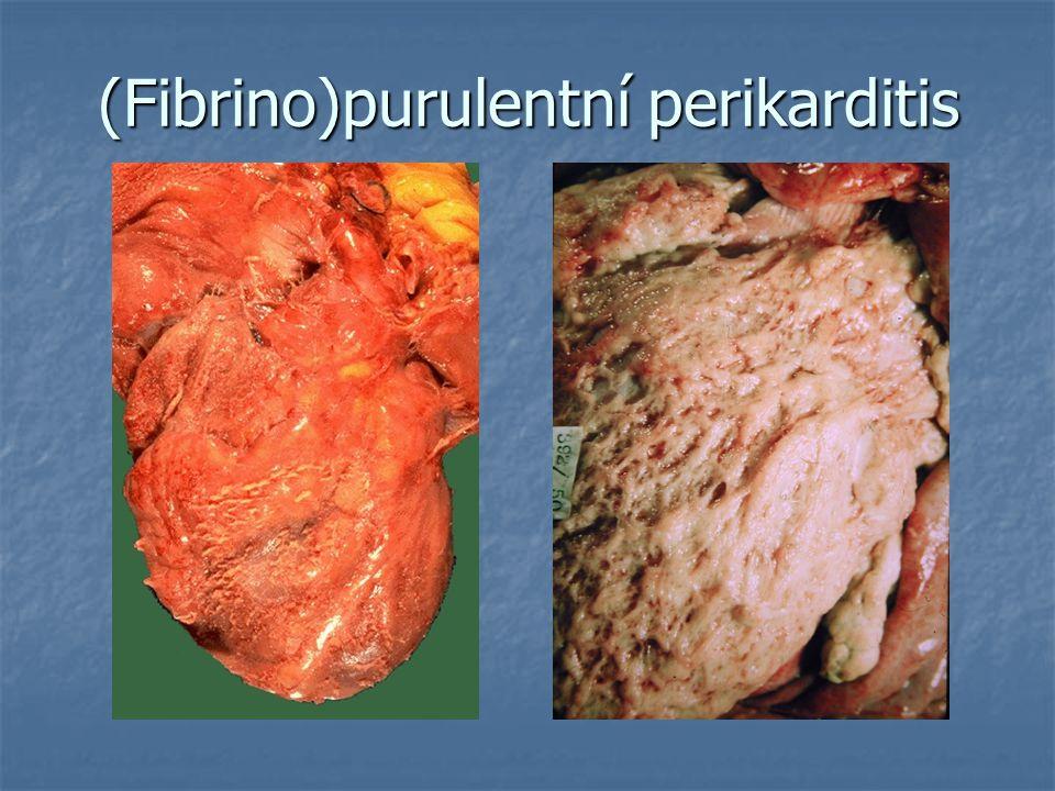 (Fibrino)purulentní perikarditis