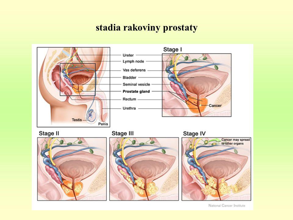 stadia rakoviny prostaty