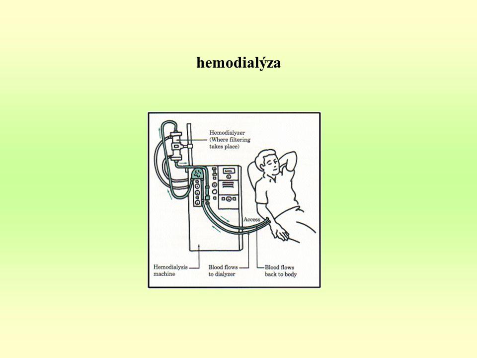 hemodialýza