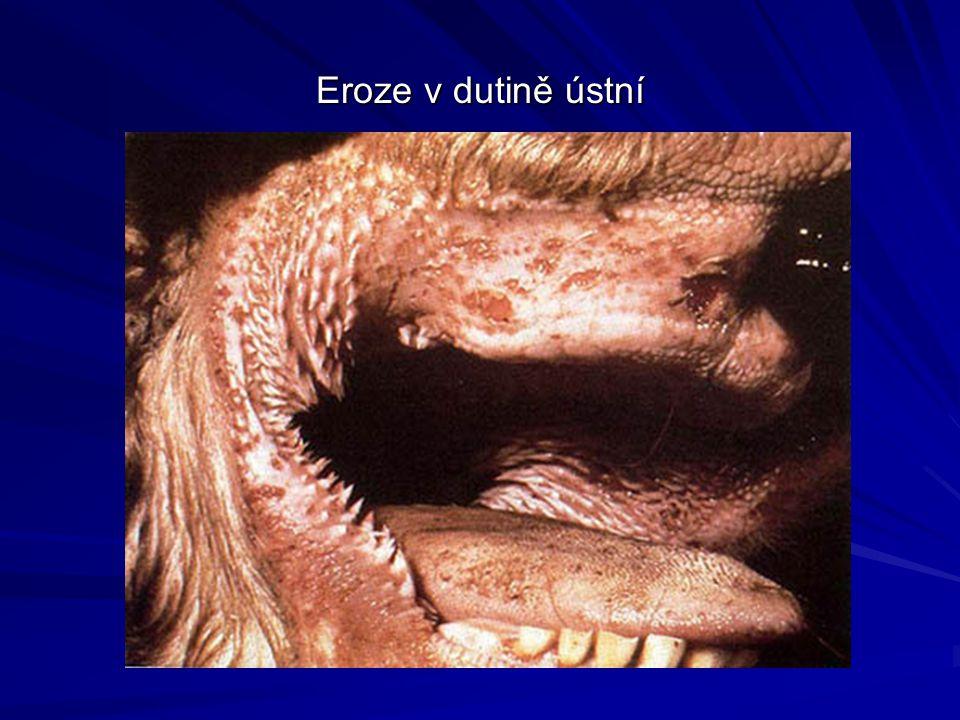 Eroze v dutině ústní