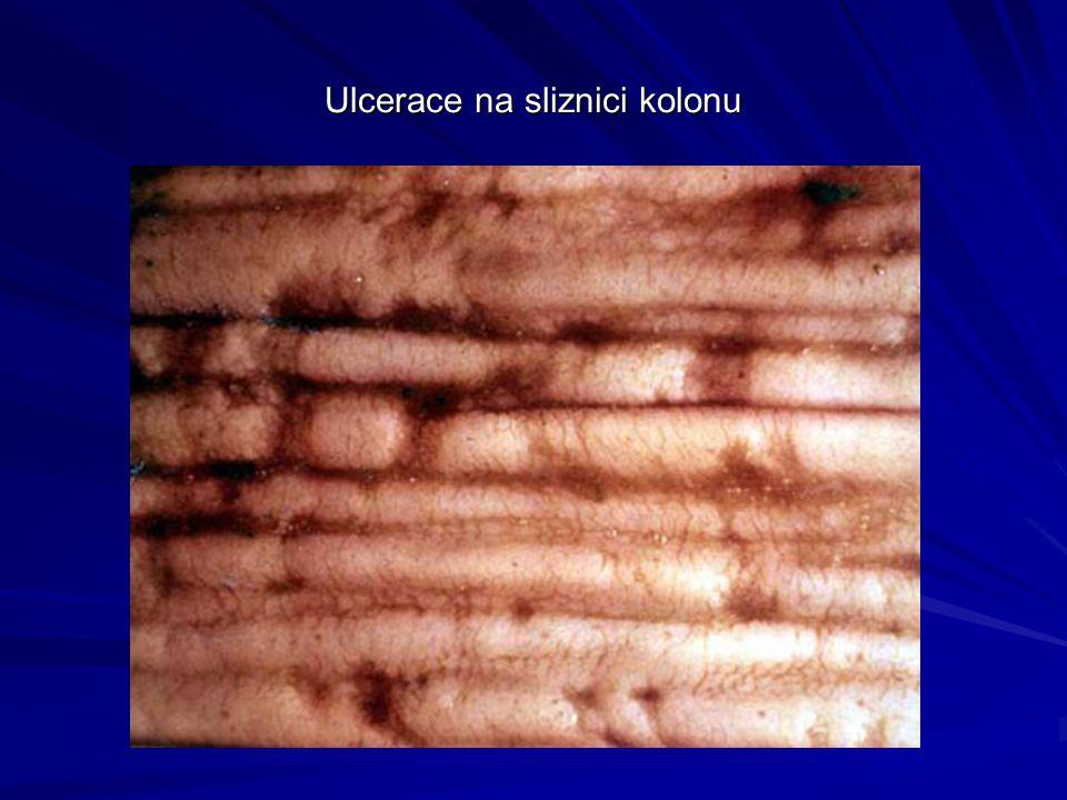 Ulcerace na sliznici kolonu