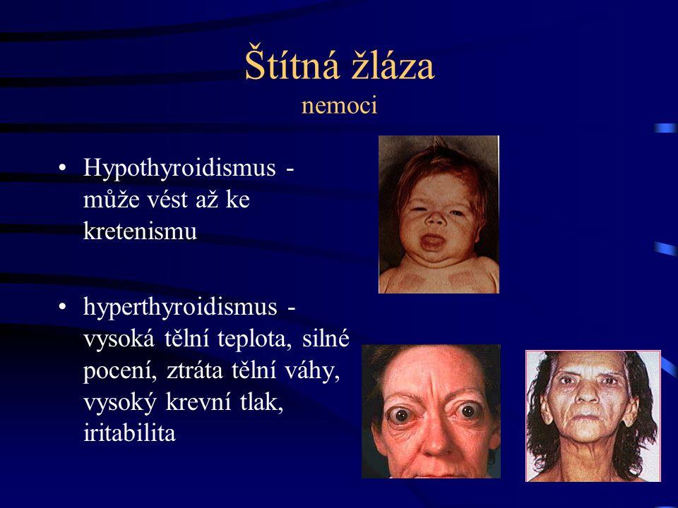 Štítná žláza nemoci Hypothyroidismus - může vést až ke kretenismu hyperthyroidismus - vysoká tělní teplota, silné pocení, ztráta tělní váhy, vysoký kr