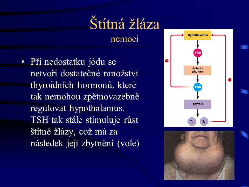 Štítná žláza nemoci Při nedostatku jódu se netvoří dostatečné množství thyroidních hormonů, které tak nemohou zpětnovazebně regulovat hypothalamus. TS