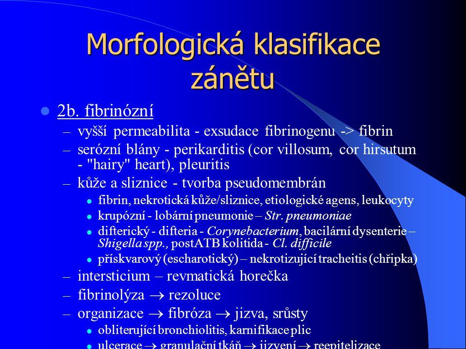 Morfologická klasifikace zánětu 2b. fibrinózní – vyšší permeabilita - exsudace fibrinogenu -> fibrin – serózní blány - perikarditis (cor villosum, cor