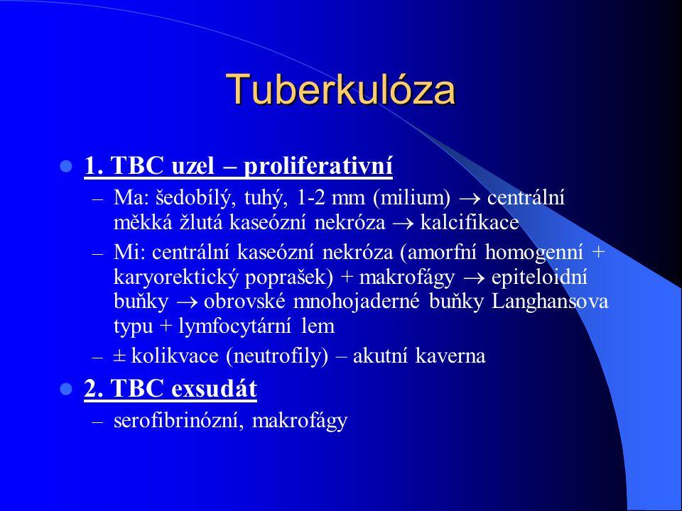 Tuberkulóza 1. TBC uzel – proliferativní – Ma: šedobílý, tuhý, 1-2 mm (milium)  centrální měkká žlutá kaseózní nekróza  kalcifikace – Mi: centrální
