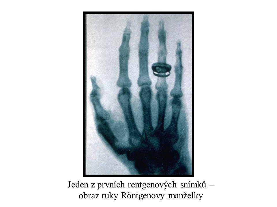 Jeden z prvních rentgenových snímků – obraz ruky Röntgenovy manželky