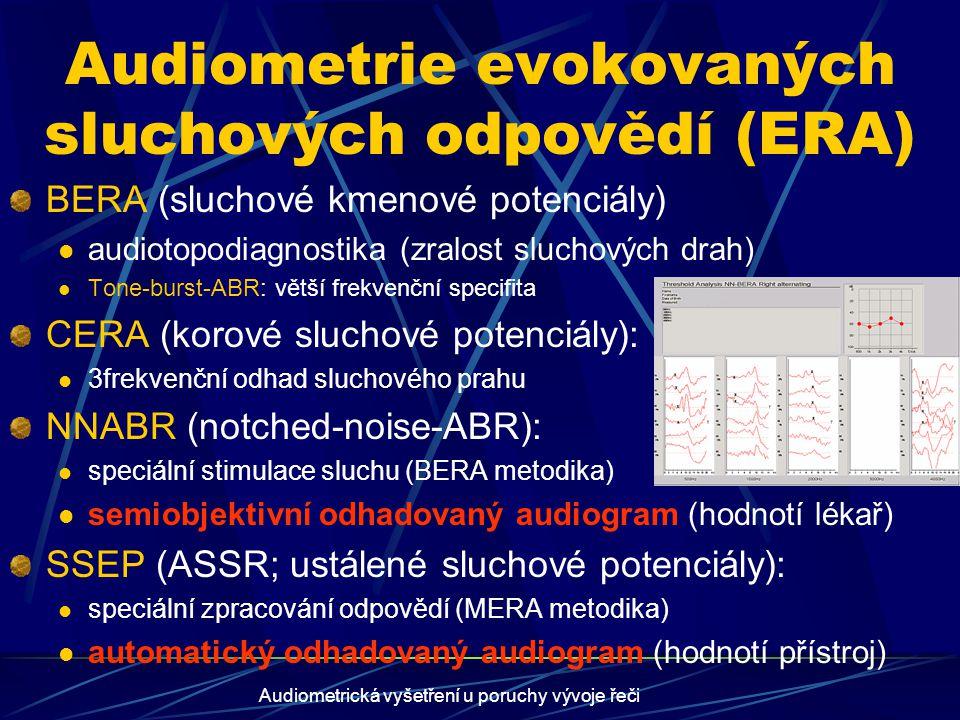 Audiometrická vyšetření u poruchy vývoje řeči Speciální audiometrické problémy Vyšetření ke korekci sluchu (sluchadla, kochleární implantát) UCL, MCL...náročné – jen starší děti slovní audiometrie – percepční test -slovní diskriminace preimplantační audiodiagnostika (ECoG, komplexní preimplantační vyhodnocení) Audiodiagnostika při poruše řeči dichotické testy (hemisferální kooperace) CERA (kortikální zpracování sluchu a řeč.signálu) Simulace/agravace a medikolegální otázky detekční testy (Stenger, Lee...)…starší děti, mladiství objektivní audiometrie